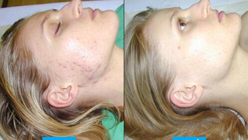 Lifting facial: radiofrecuencia, diatermia y tecarterapia