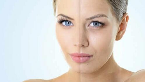 Botox facial + Mesoterapia media ¡Siéntete joven!