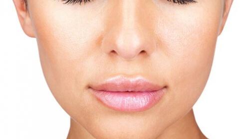 Tratamiento de volumen, relleno e hidratación  labial con ácido hialurónico
